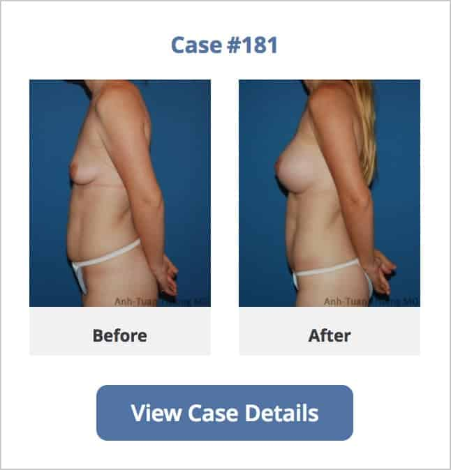 Dr. Truong Best Mini tummy tuck plastic surgeon in Chicago, IL