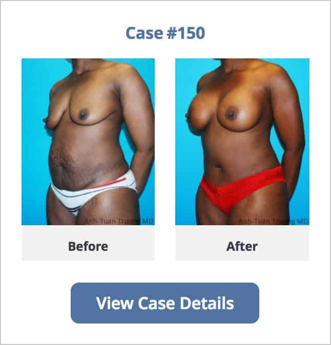 image of a mommy makeover surgery done at Chicago Breast & Body Aesthetics