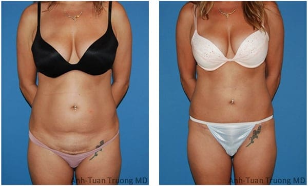 Chicago Mini Tummy Tuck