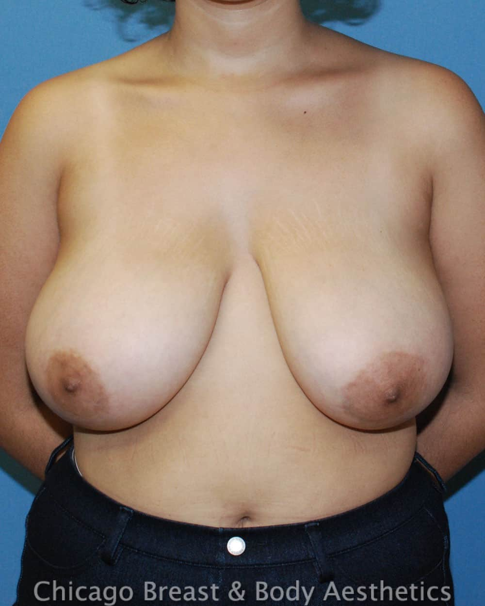 Breast Lift Patient Photo - Case 6539 - before view-