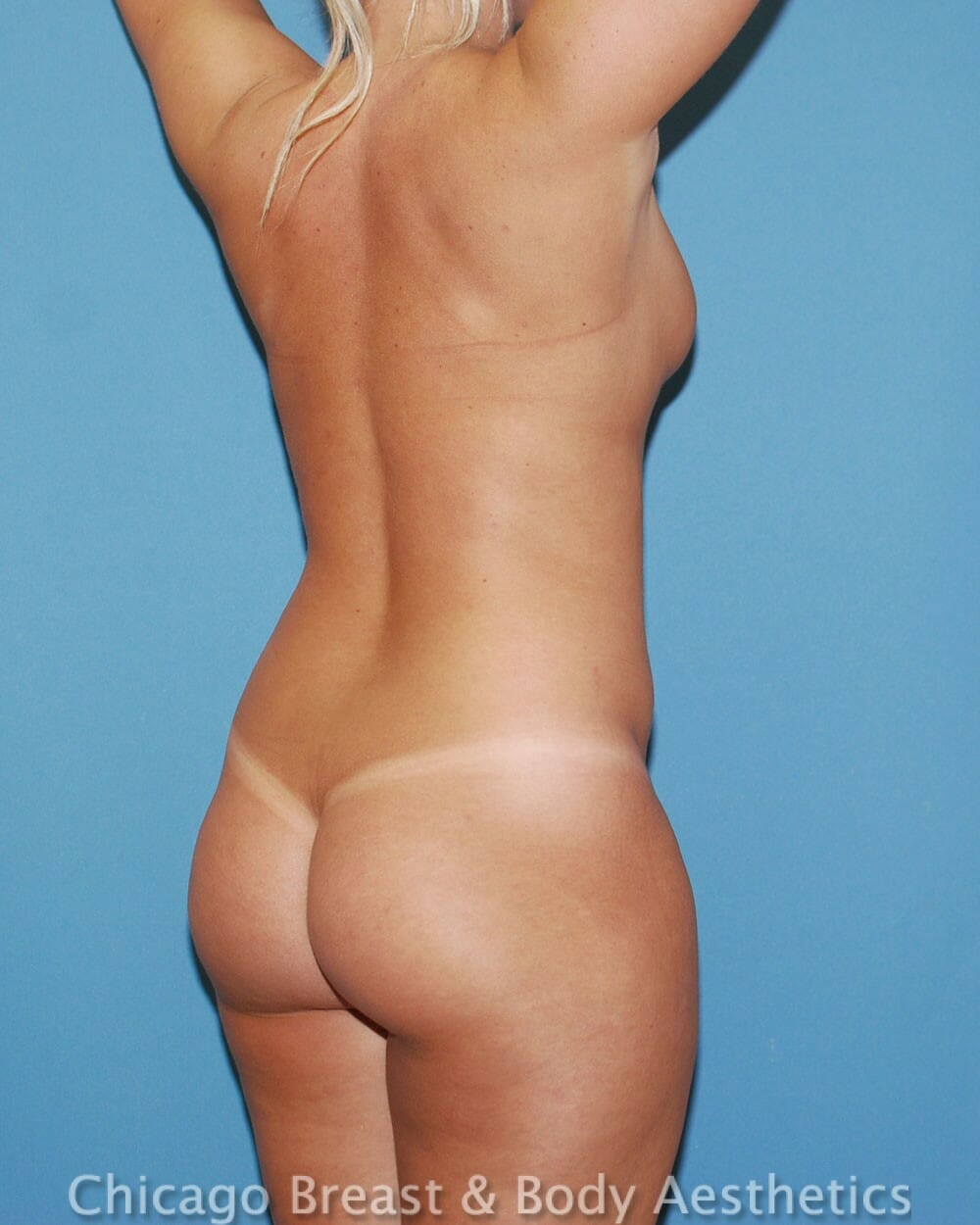 Brazilian Butt Lift Patient Photo - Case 31352 - before view-2